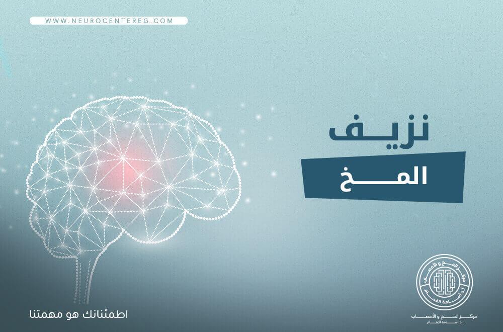 نزيف المخ: أسبابه، أعراضه وطرق علاجه
